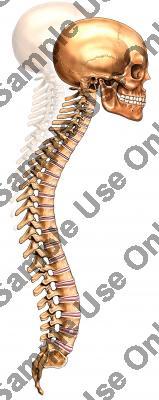 spine_kyphosis.jpg